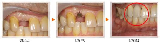 歯を1本失った場合