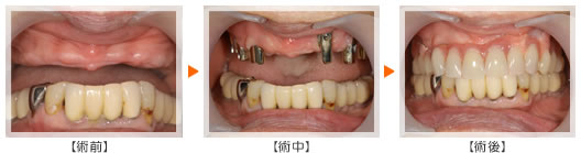 歯を何本か失った場合